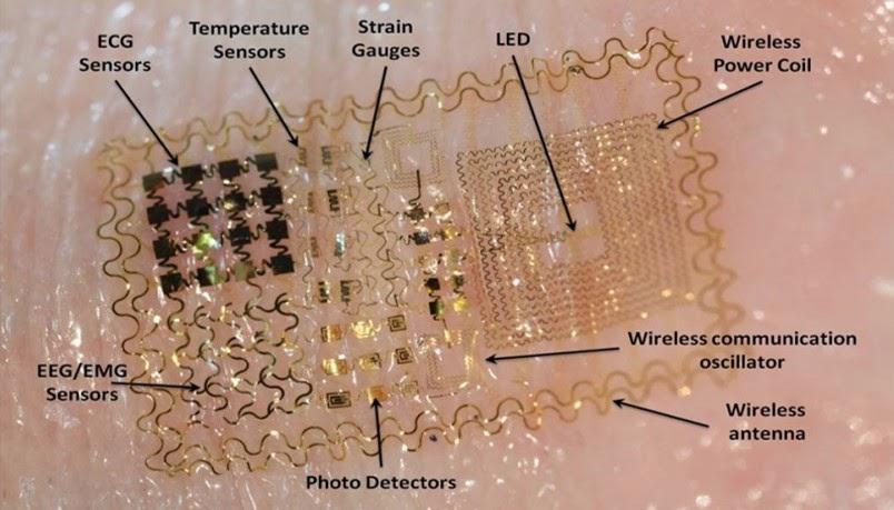 Picture of circuit board on person's wrist - telemedicine