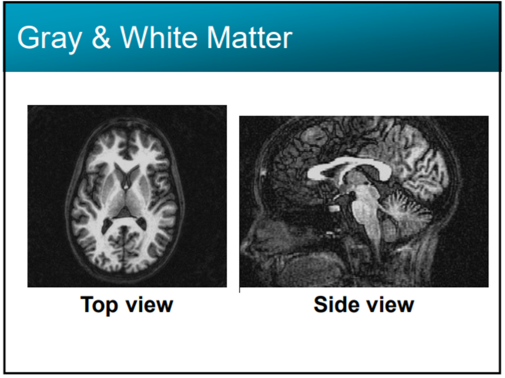 Image of Brain scan Xray - regarding Cannabis